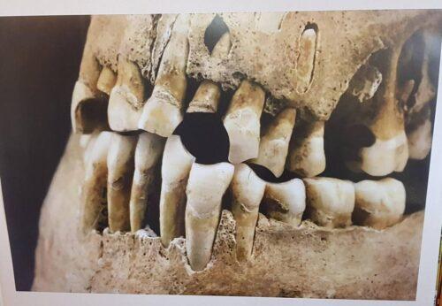Kridtpiberygning er ikke anbefalet af førende tandlæger. Kraniet er ikke fundet på CG